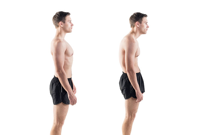 forward head posture example