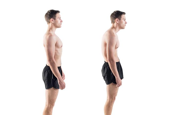 forward head posture example